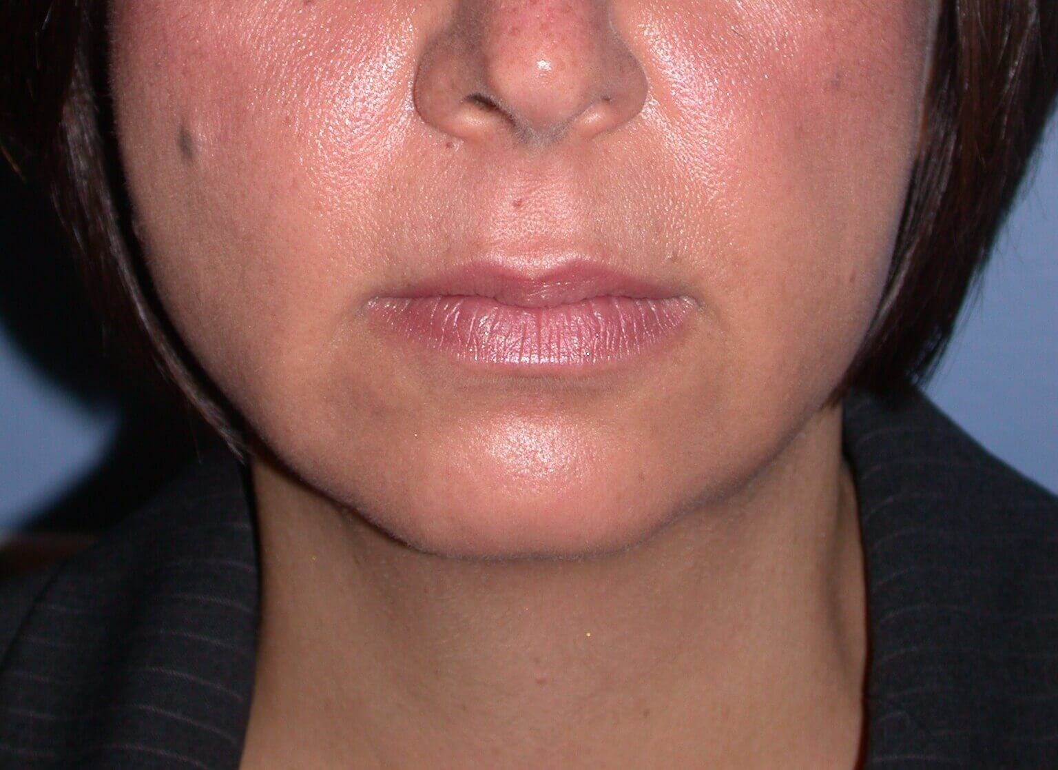 Chin Implant Front View Before