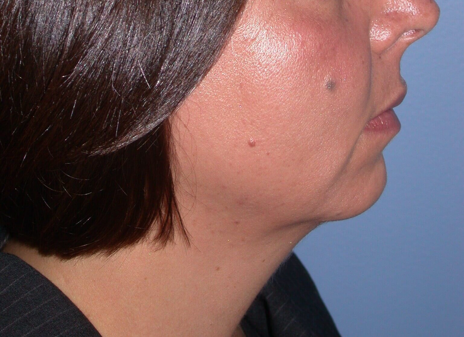 Chin Implant Side Right Before
