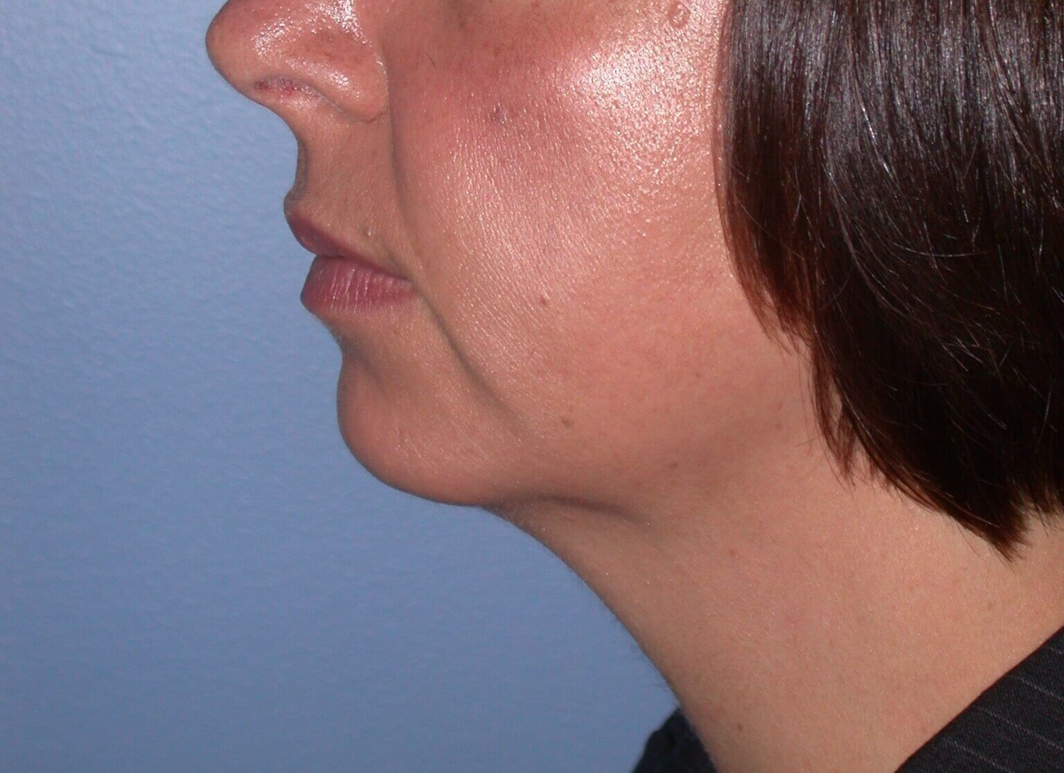 Chin Implant Side Left Before