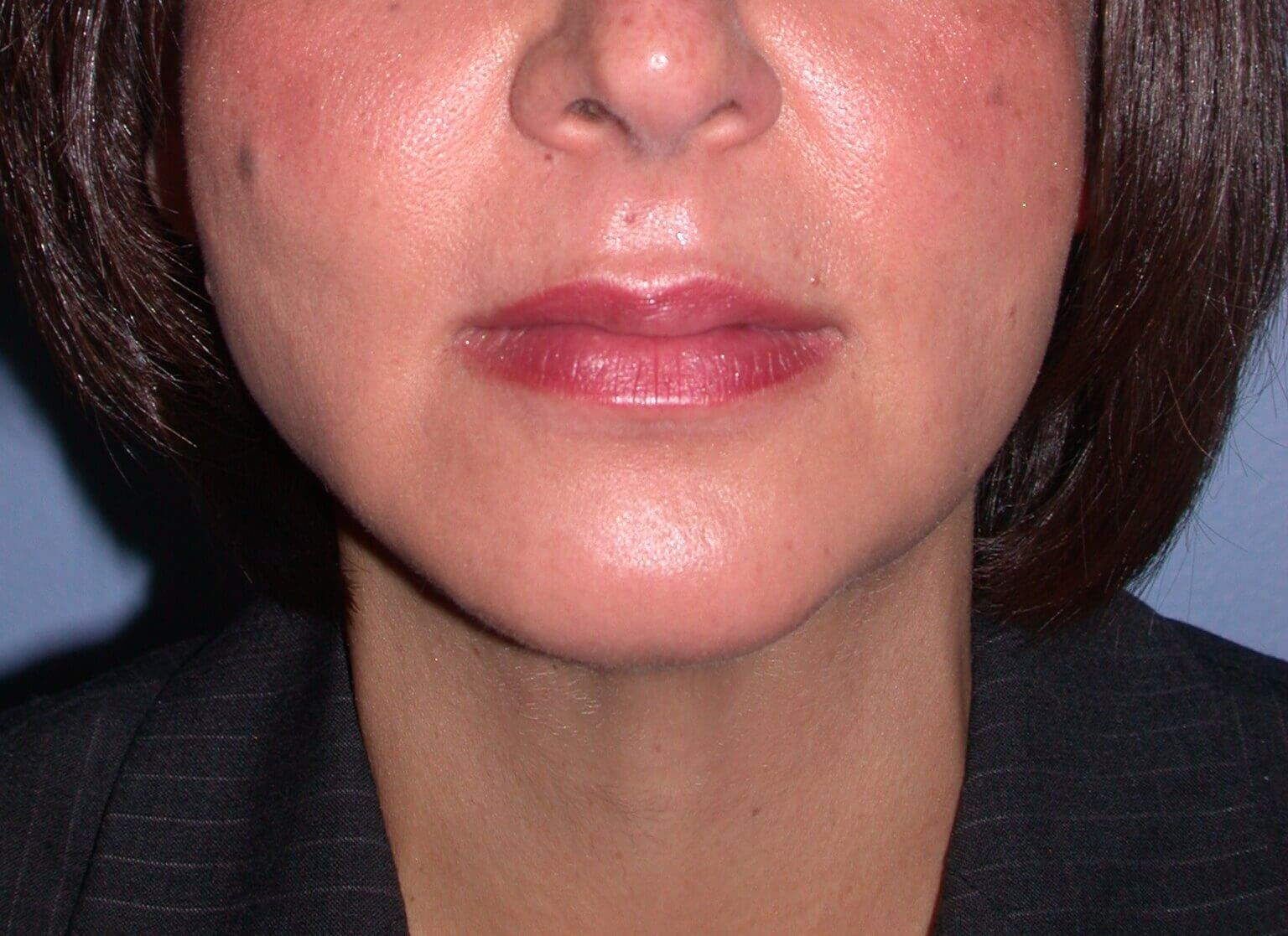 Chin Implant Front View After