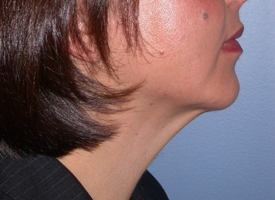 Chin Implant Side Right After