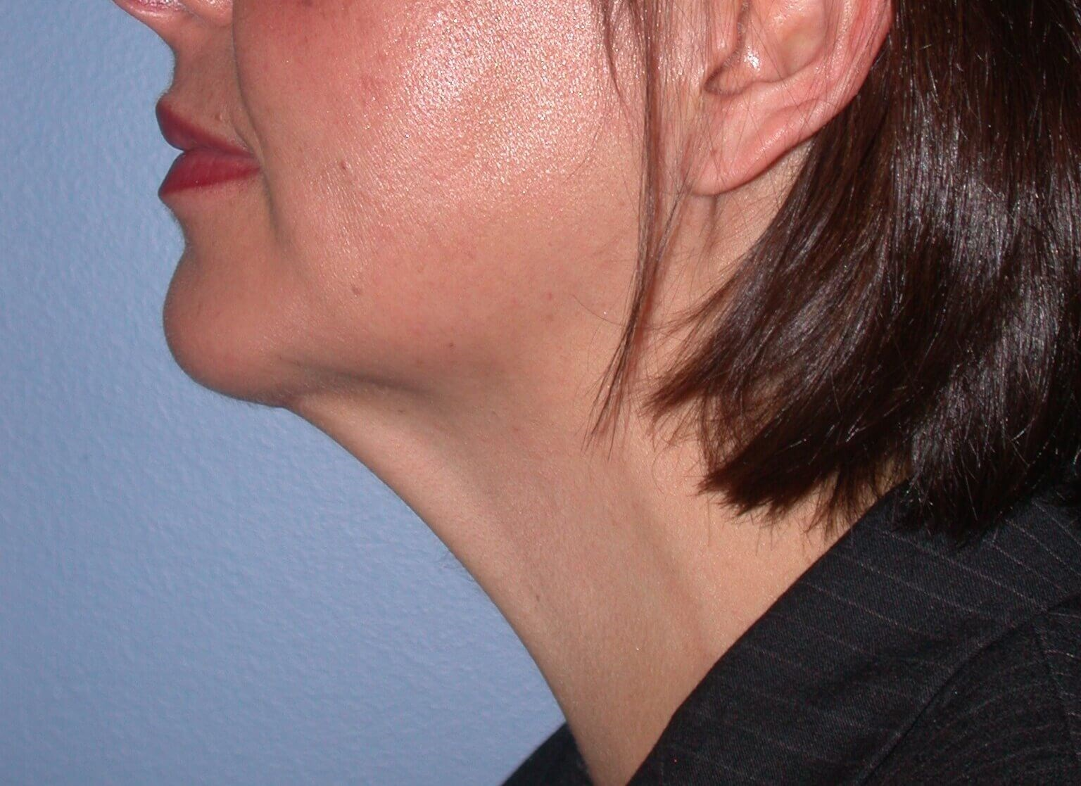 Chin Implant Side Left After