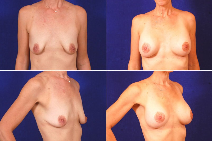 Breast Lift w/ Augmentation Before
