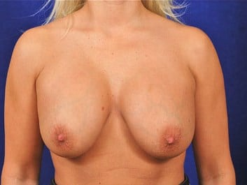 Breast Lift with Augmentation Before