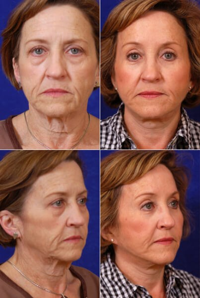 Facelift,Browlift, Quad Bleph Before