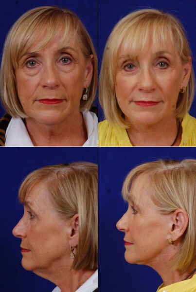 Facelift,Browlift.Lower Bleph Before