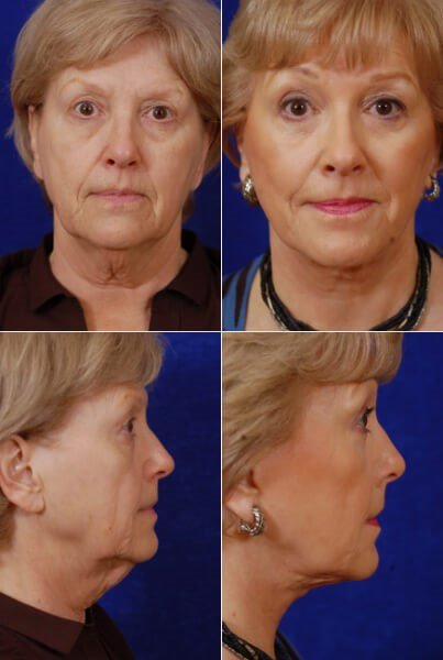 Facelift,Browlift,Lower Bleph Before