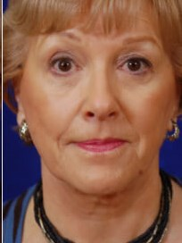 Facelift,Browlift,Lower Bleph After