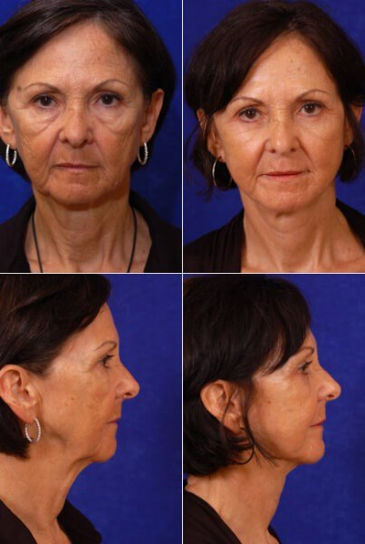 Facelift,Lower Blepharoplasty Before