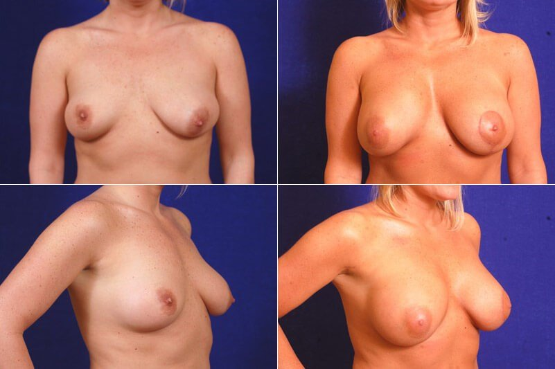 Breast Aug w/Lift on Left Side Before