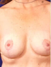 Breast View After
