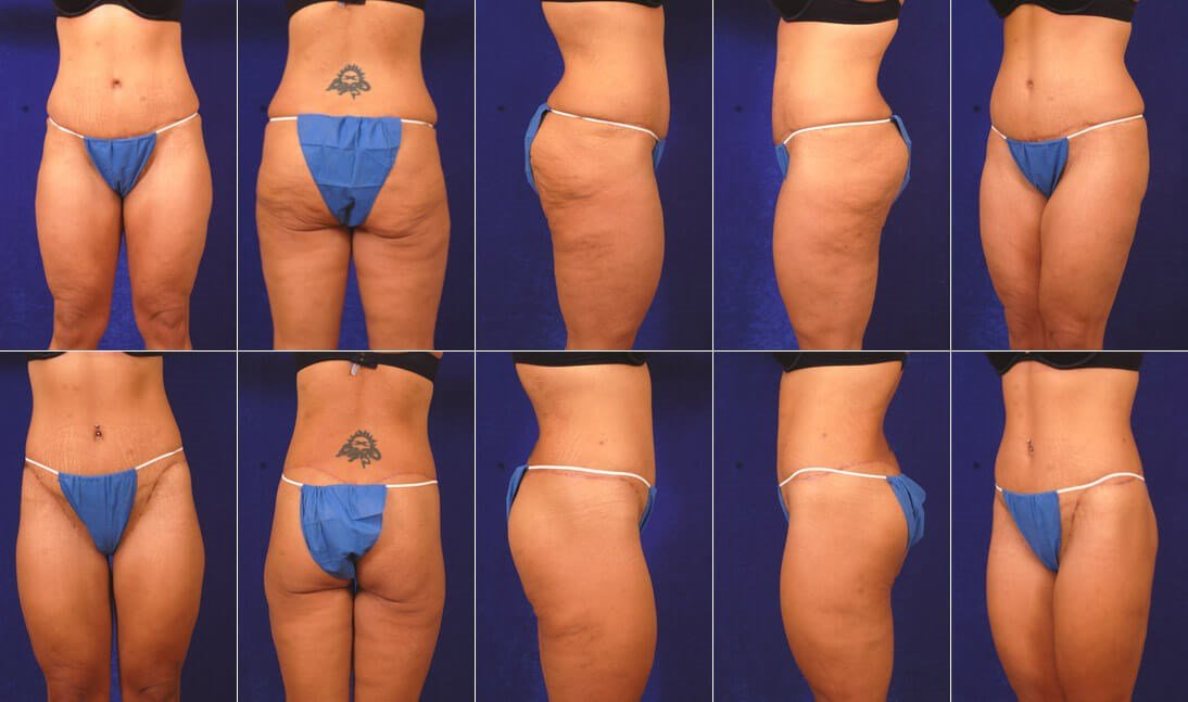 Weight Loss Surgery Before