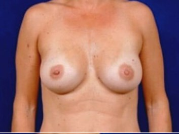 Breast Augmentation  (Saline) After