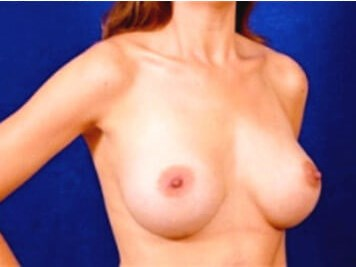 Breast Augmentation (Silicone) After