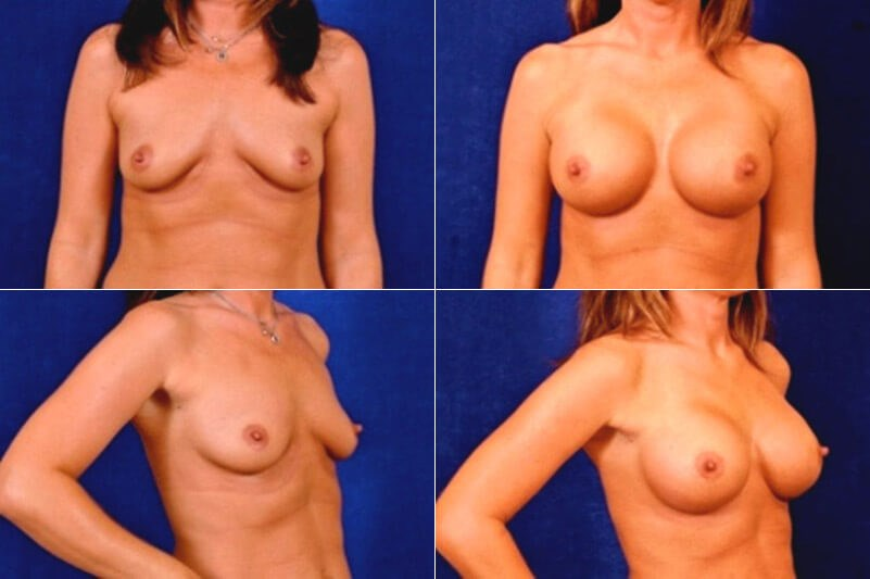 Breast Augmentation (Saline) Before