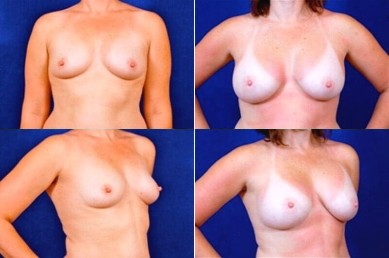 Breast Augmention (Silicone) Before