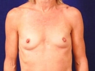 Breast Aug 46 Before