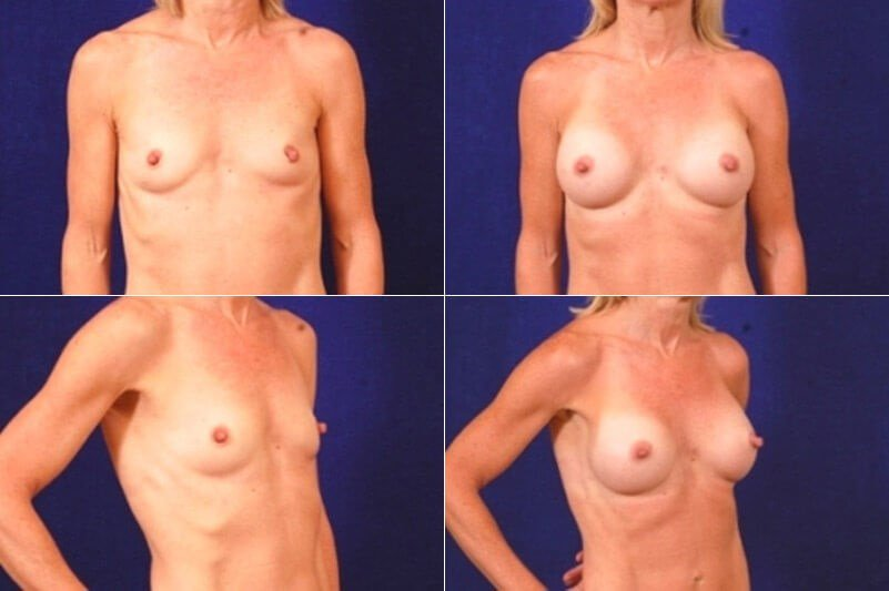 Breast Aug 46 After