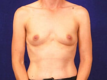 Breast  Augmentation (silicone Before