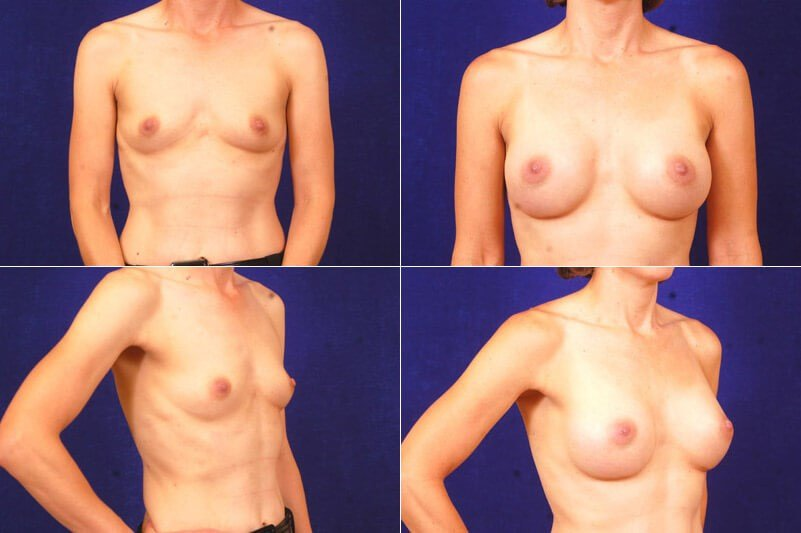 Breast  Augmentation (silicone After