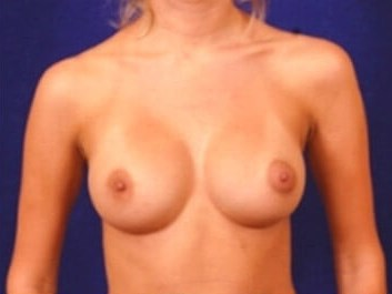 Breast Enlargement (Silicone) After