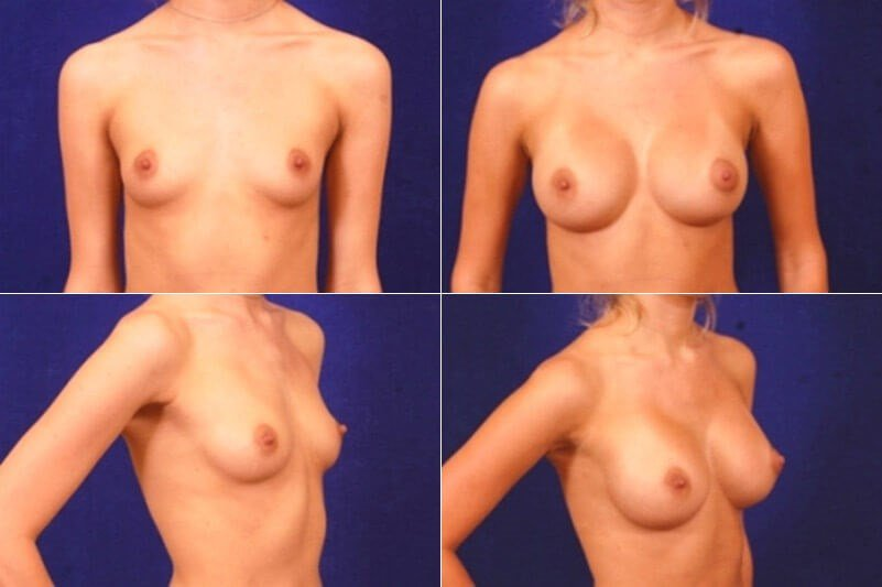 Breast Enlargement (Silicone) Before