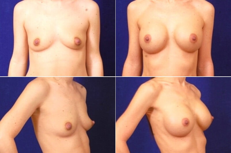 Breast Augmentation (Silicone) Before