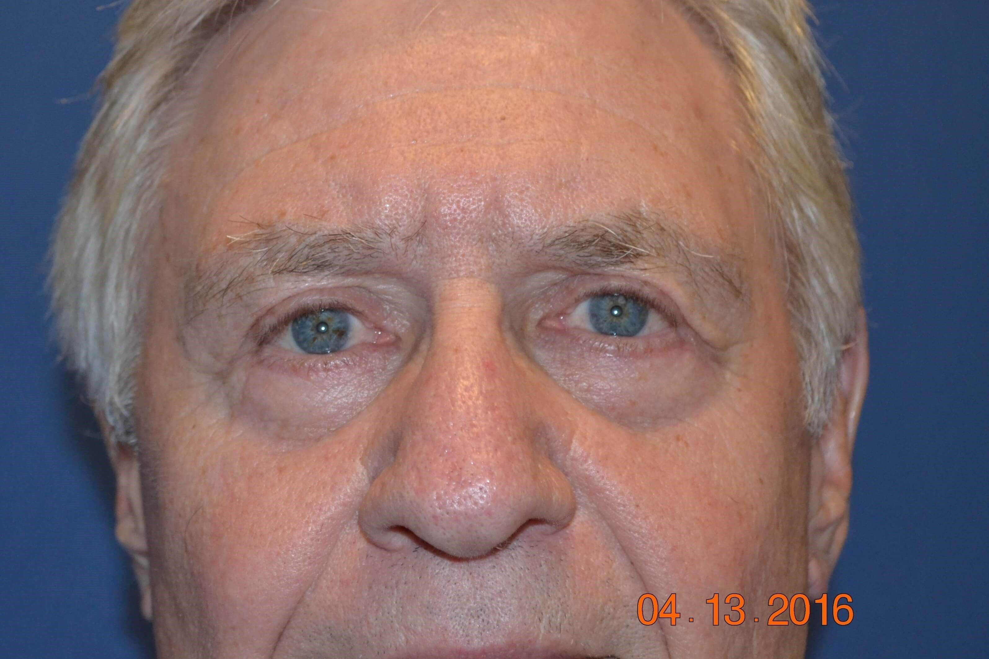 Four-Lid Blepharoplasty After