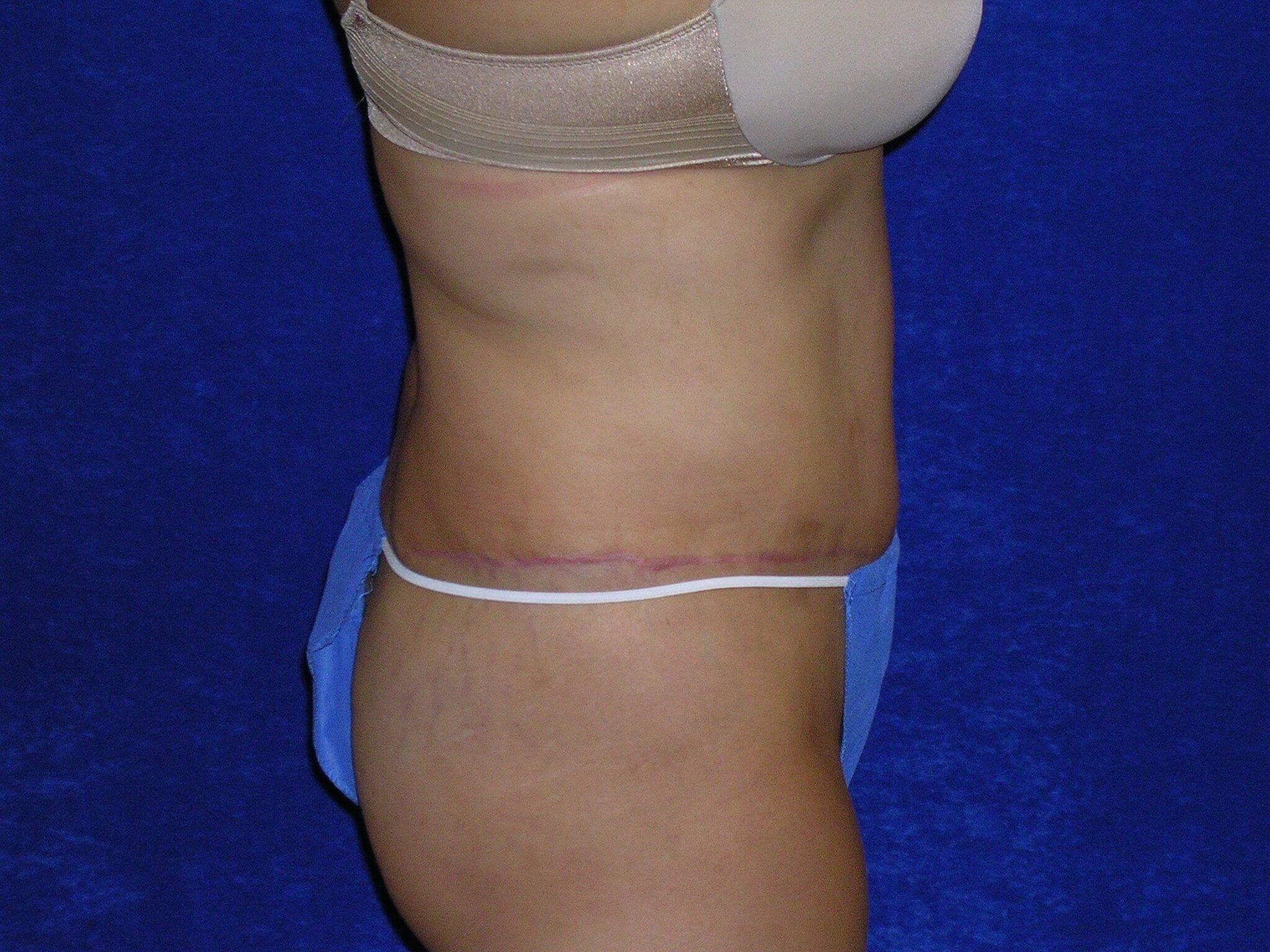 Abdominoplasty After