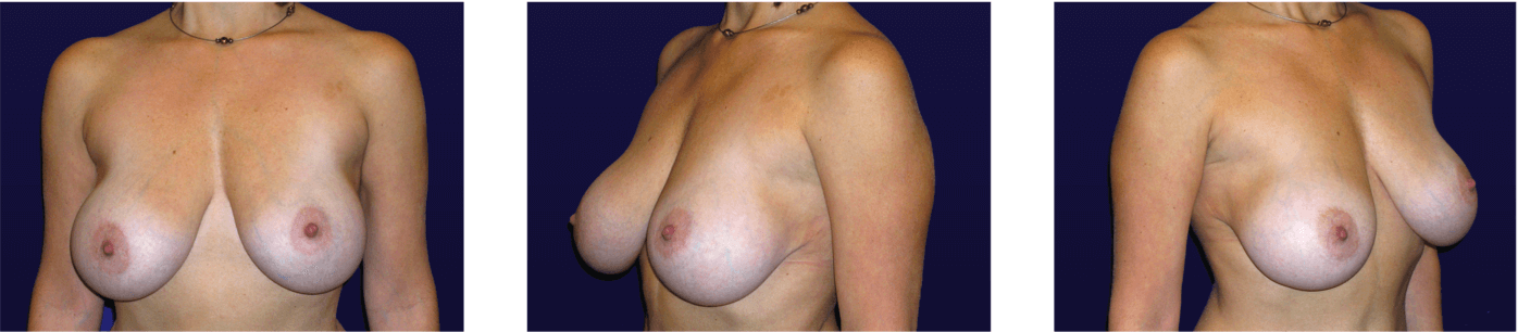 Mastopexy w/ Implant Exchange Before