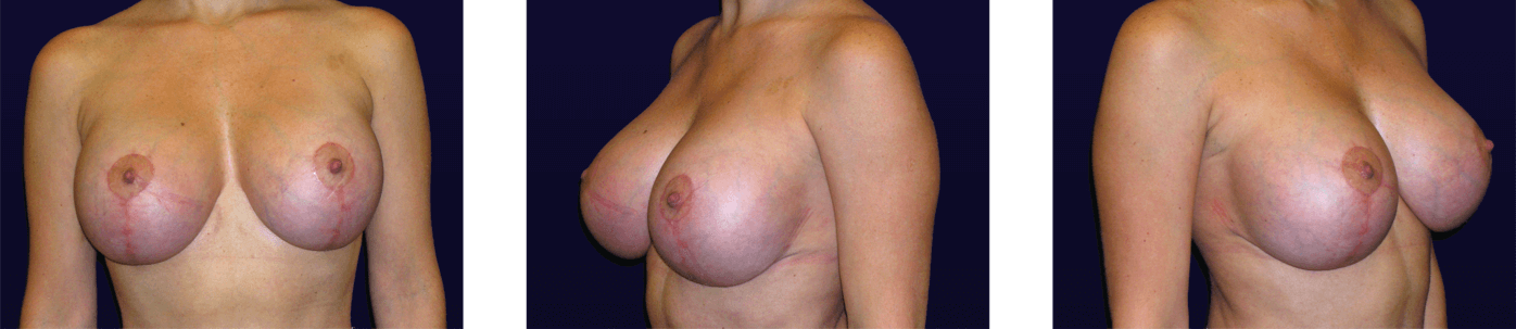 Mastopexy w/ Implant Exchange After
