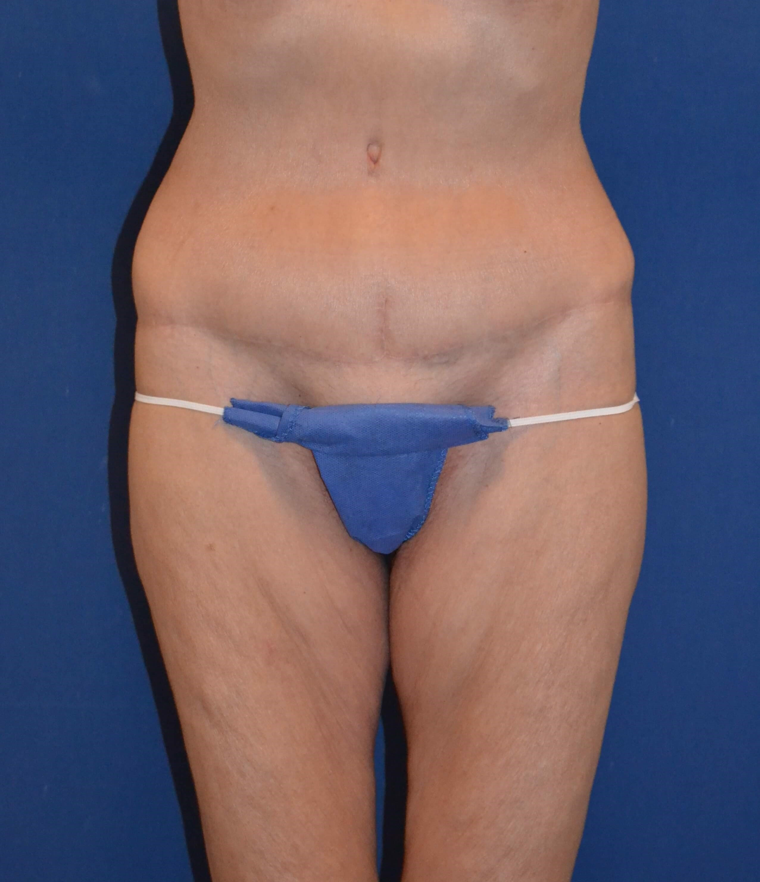 Circumferential Abdominoplasty After