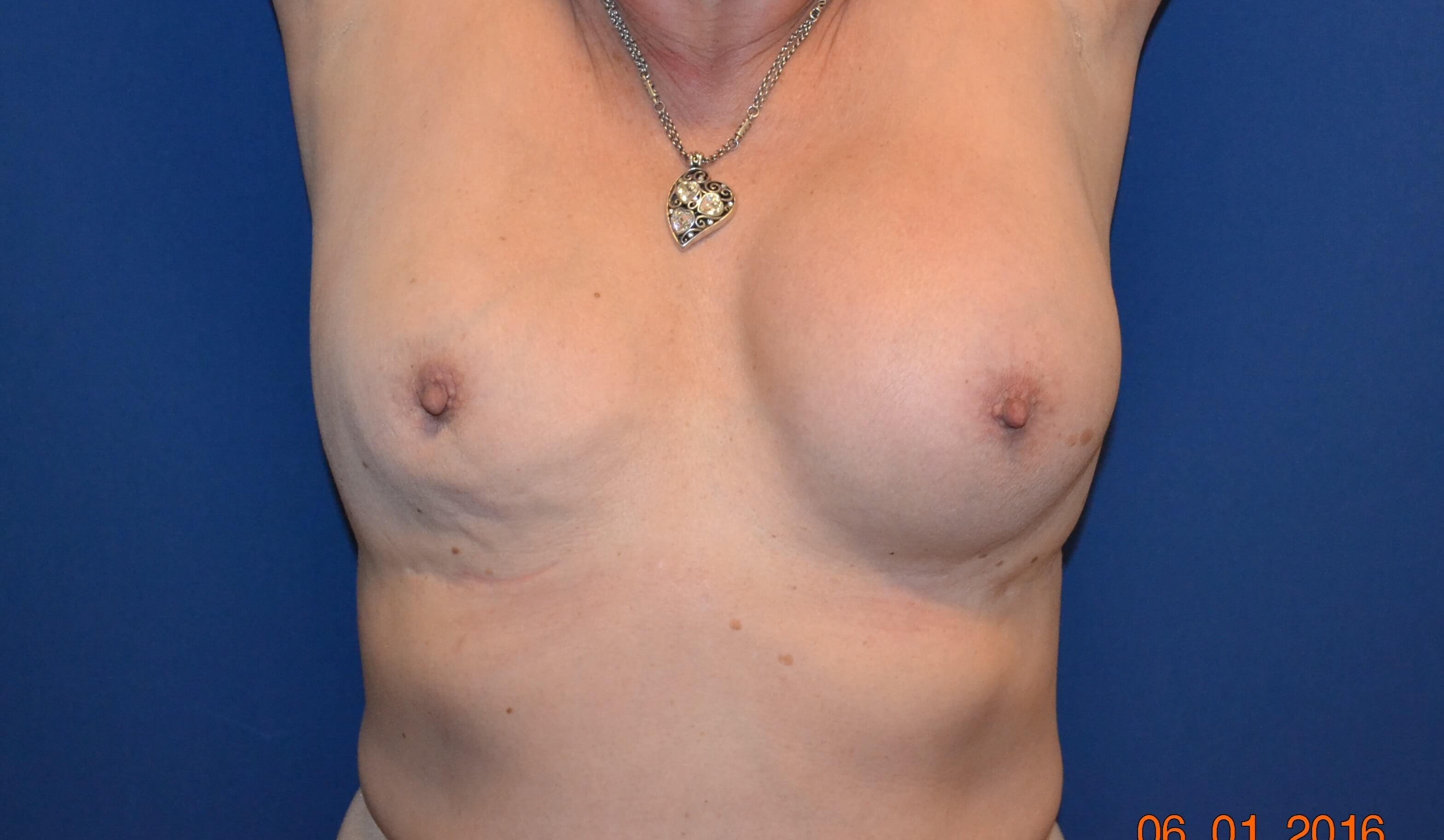 Breast Implant Exchange Before