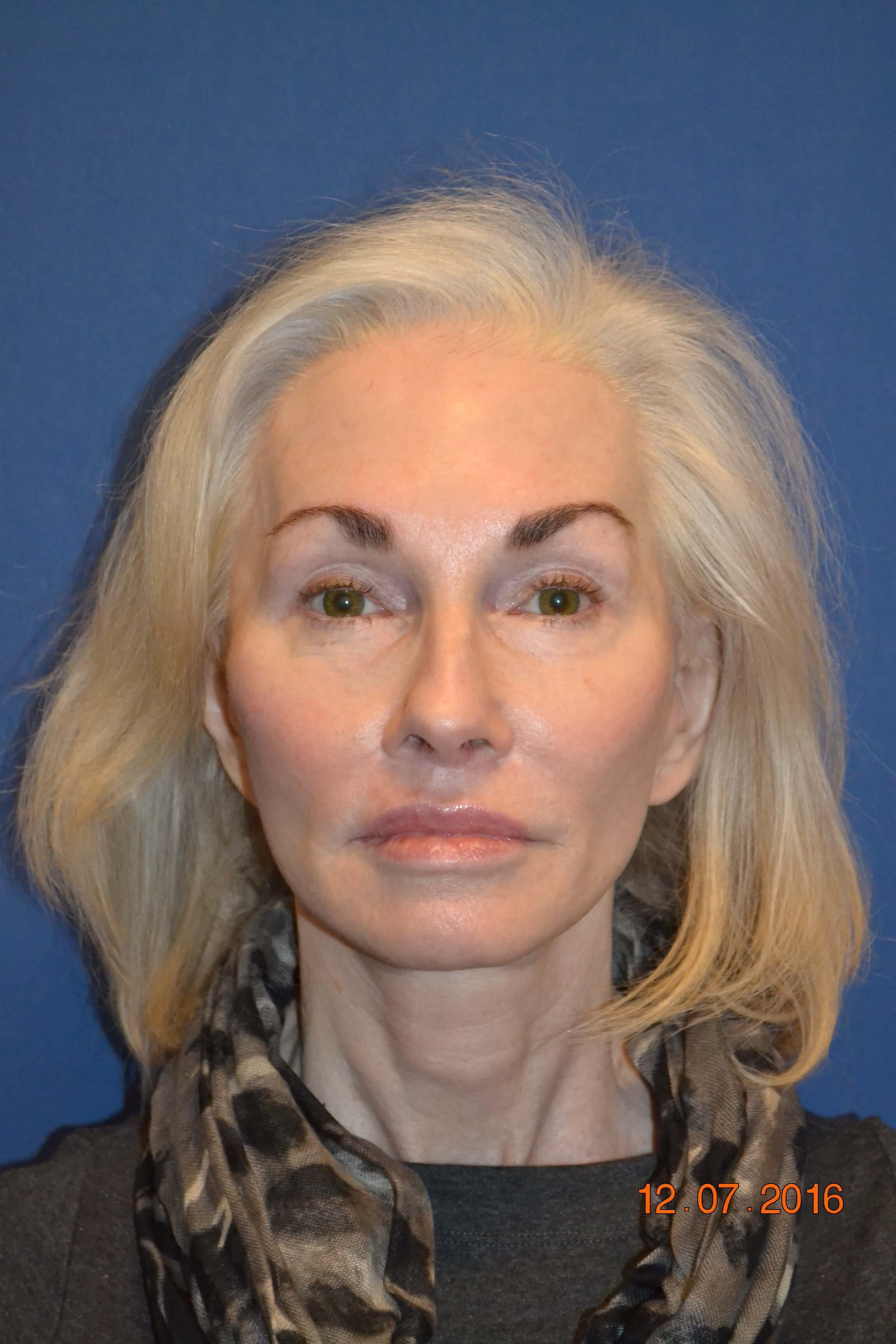 Female, Secondary Face Lift After