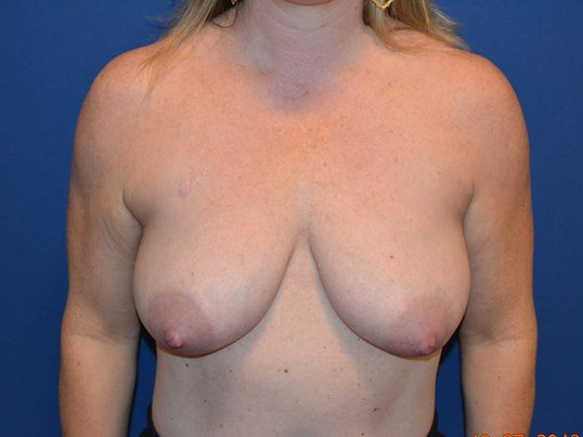 Bilateral Mastopexy Before