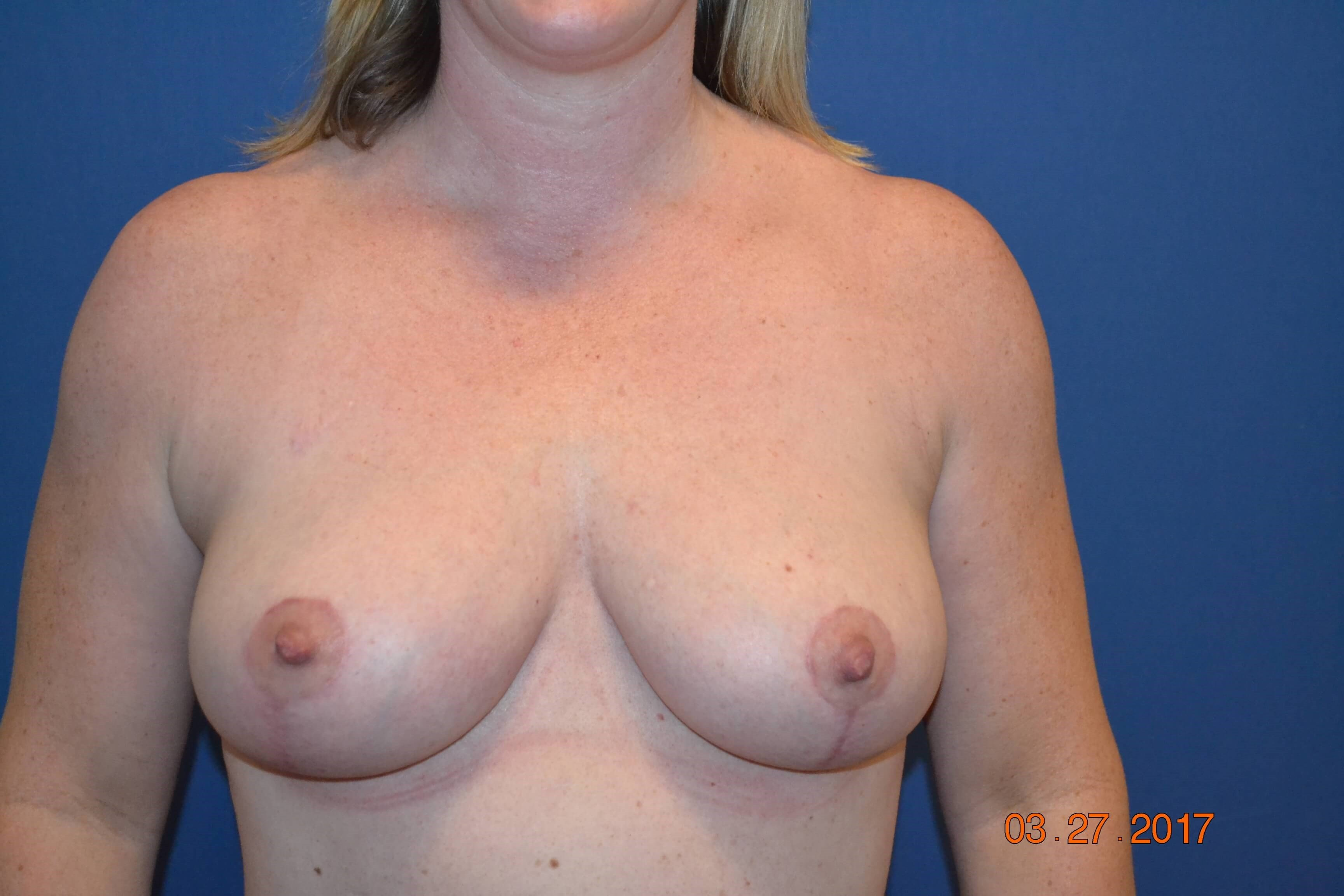 Bilateral Mastopexy After