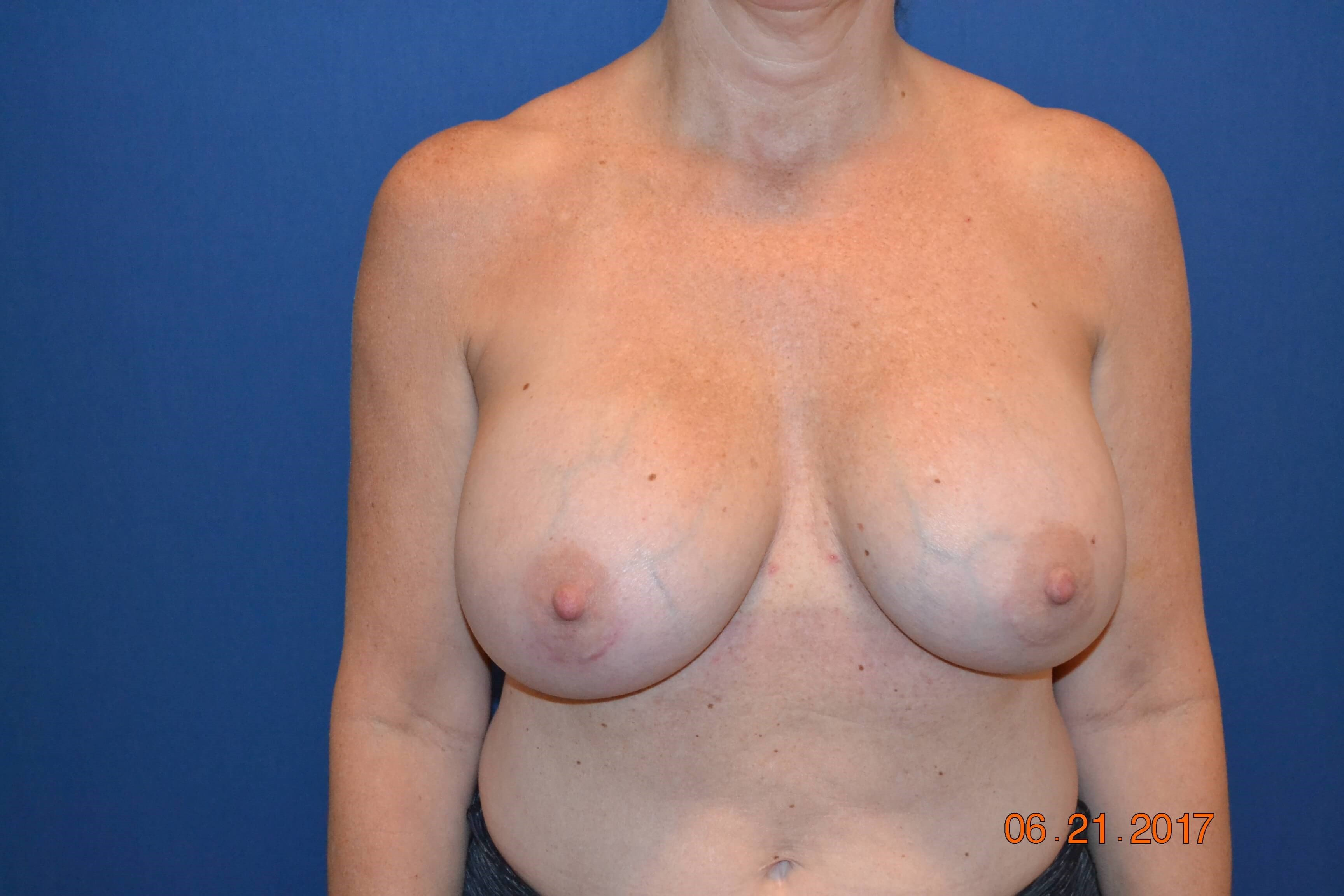 Saline to Silicone Exchange After
