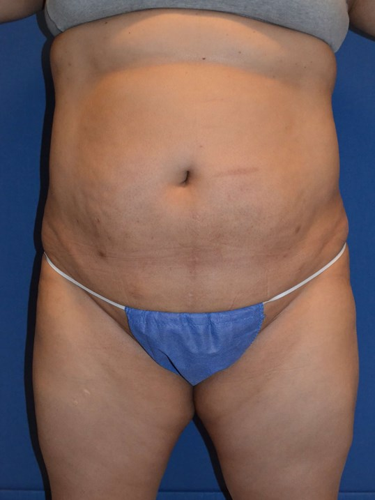 Power Assisted Liposuction Before