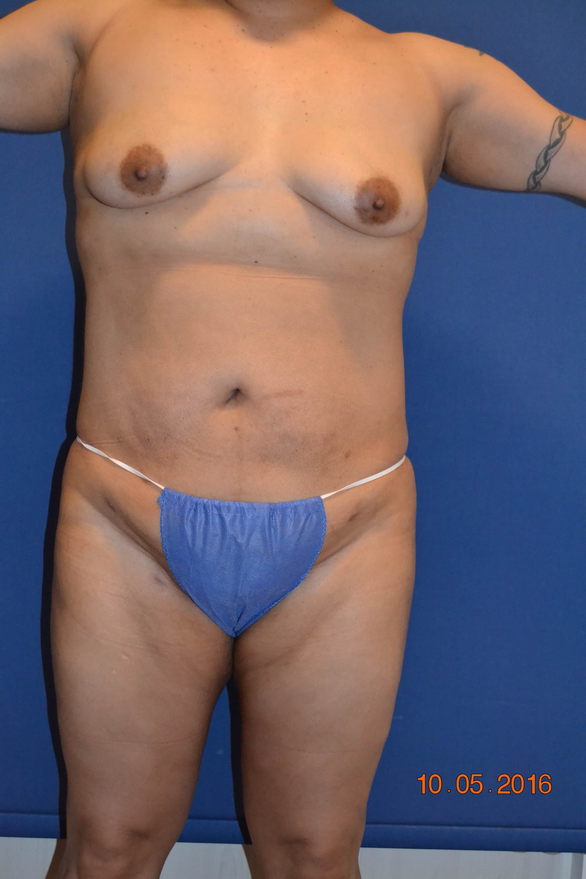 Power Assisted Liposuction After