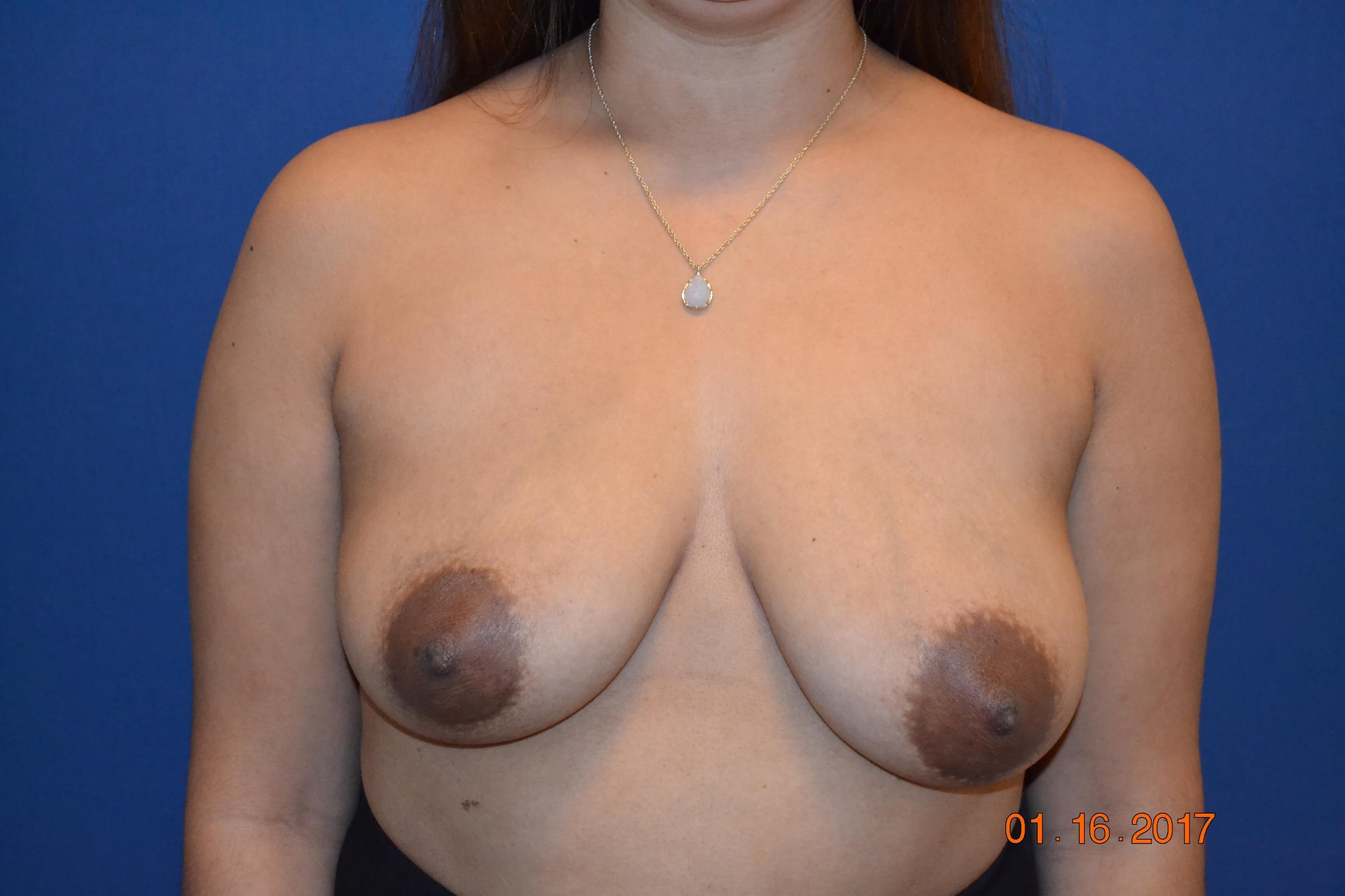 Bilateral Mastopexy Aug Before