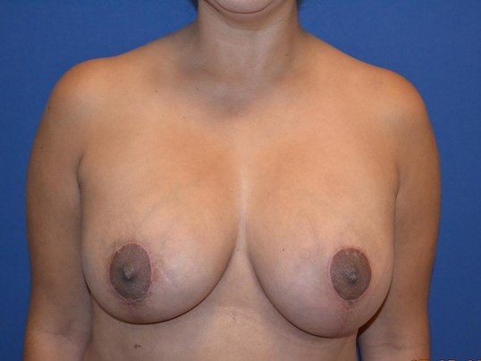 Bilateral Mastopexy Aug After
