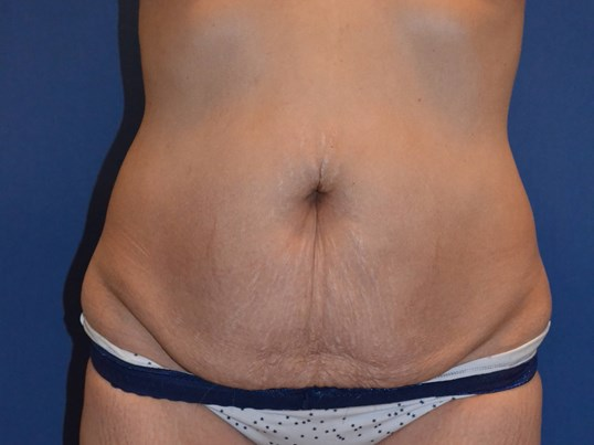 Mommy Makeover- Tummy Tuck Before