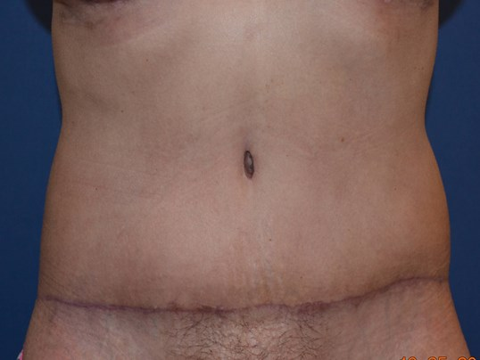 Mommy Makeover- Tummy Tuck After