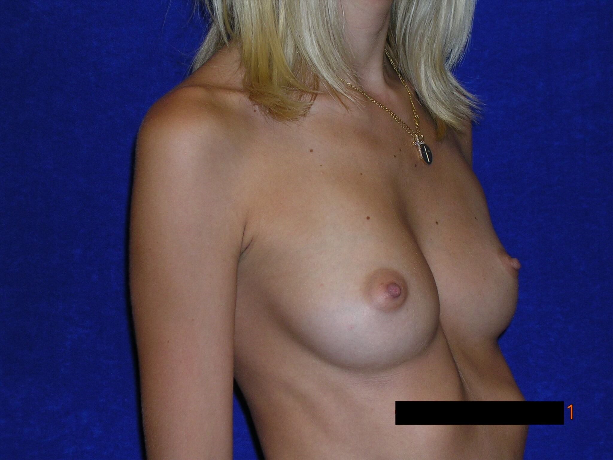 Side Bilateral Breast Aug Before