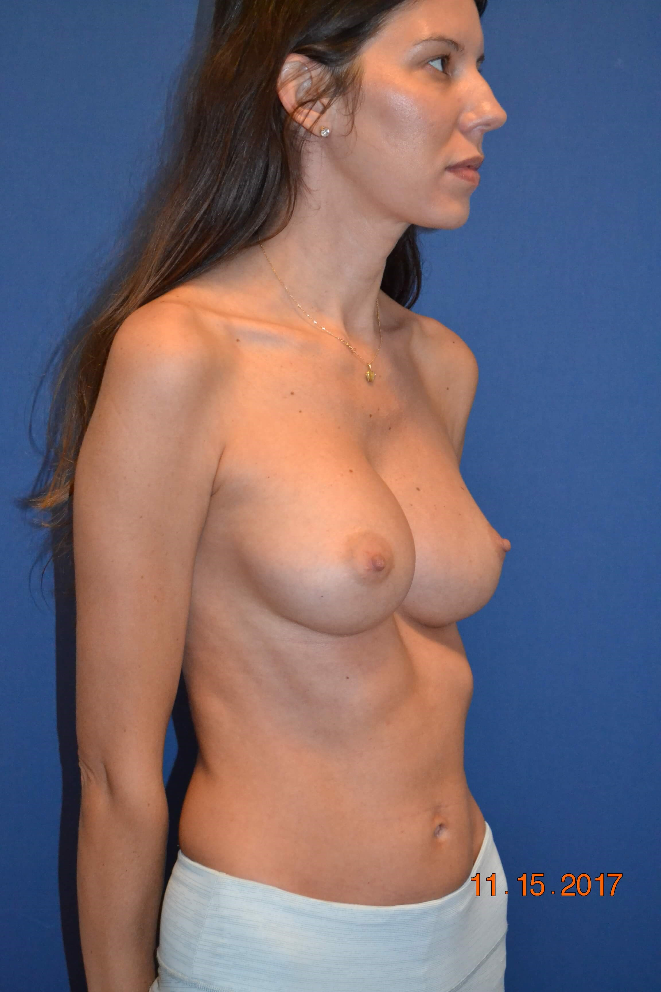 Side Bilateral Breast Aug After