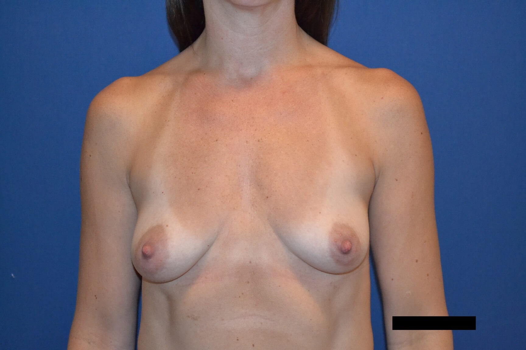 Bilateral Breast Aug Before