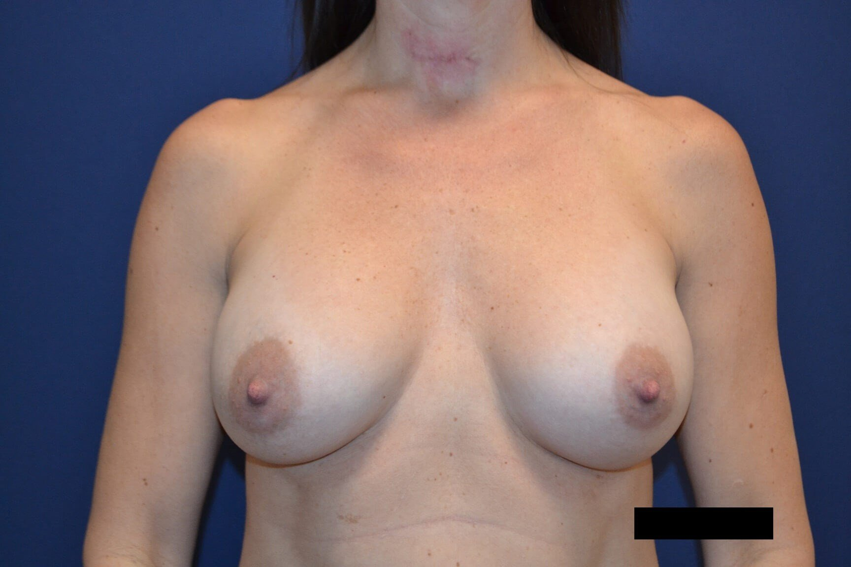 Bilateral Breast Aug After