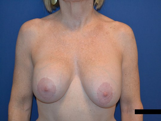 Capsulectomy, Exchange, Lift Before