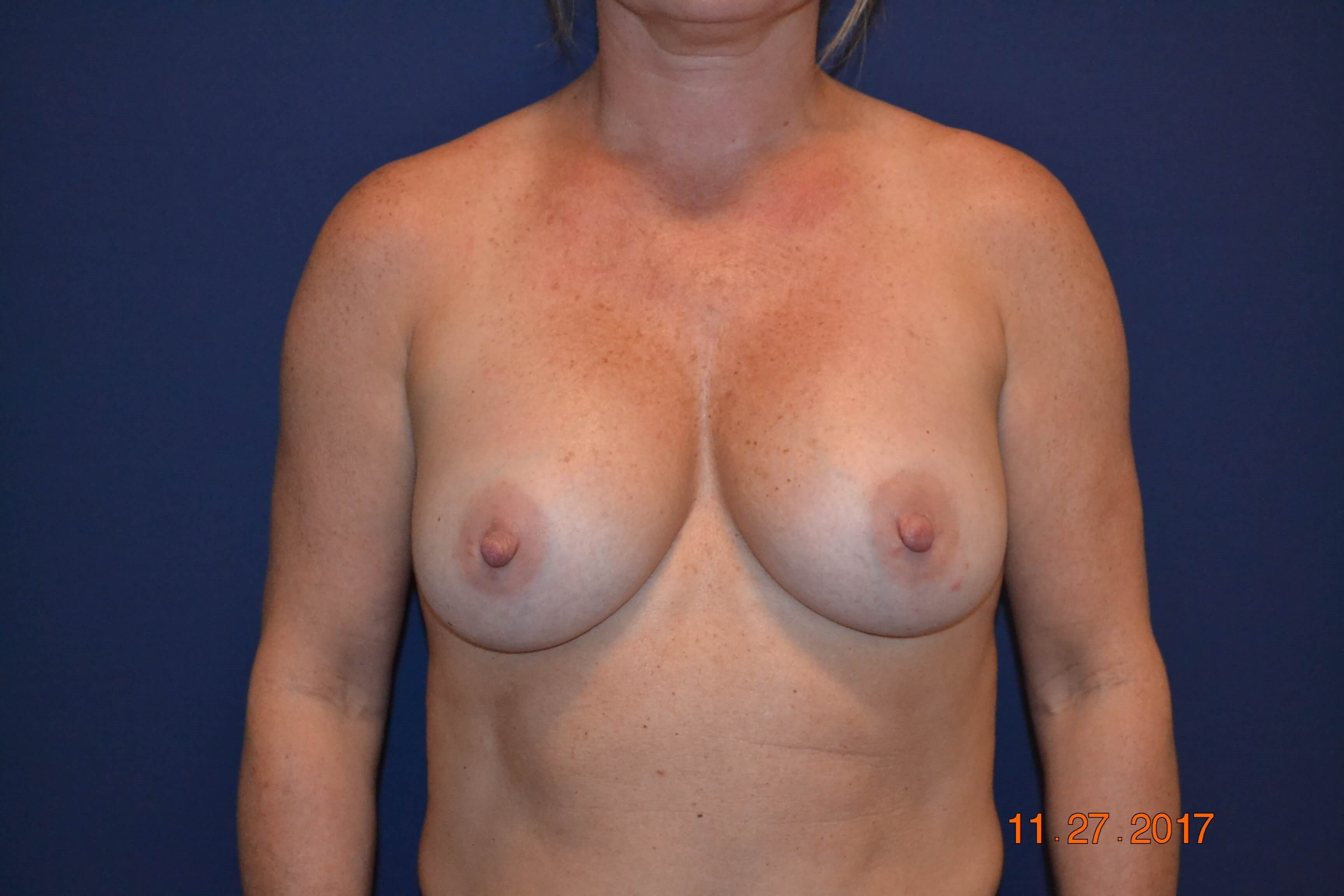 Open Calsulectomy Exchange Before