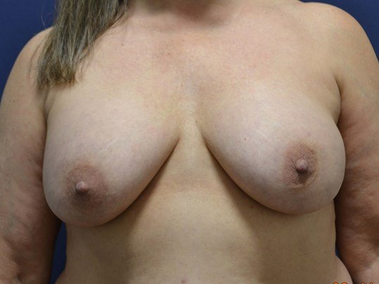 Capsulectomy Exchange and Lift Before